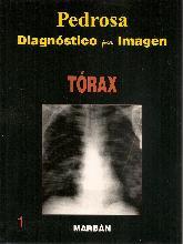 Pedrosa Diagnóstico por imagen Tórax