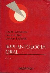Implantologia oral
