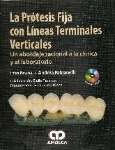 La Prótesis Fija con Líneas Terminales Verticales