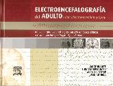 Electroencefalografía del Adulto