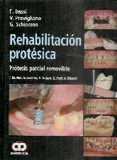 Rehabilitación protésica