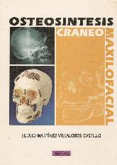 Osteosintesis craneomaxilofacial