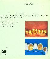 Electroformacion en odontologia restauradora. Nuevas facetas de la protesis biologica.