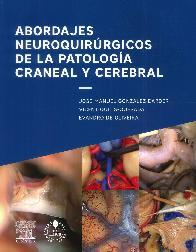 Abordajes neuroquirurgicos de la patología craneal y cerebral