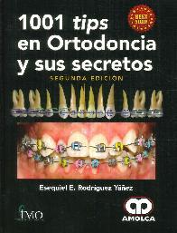 1001 Tips en Ortodoncia y sus Secretos
