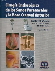 Cirugia Endoscopica de los Senos Paranasales y la Base Craneal Anterior
