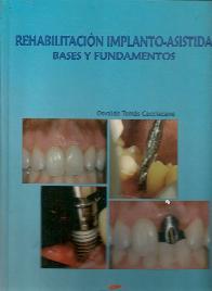 Rehabilitacion implanto-asistida