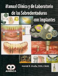 Manual Clínico y de Laboratorio de las Sobredentaduras con Implantes