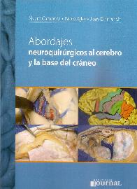 Abordajes neuroquirúrgicos al cerebro y la base del cráneo