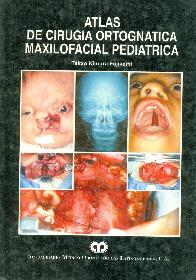 Atlas de cirugia maxilofacial pediatrica