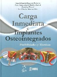 Carga Inmediata e Implantes Osteointegrados
