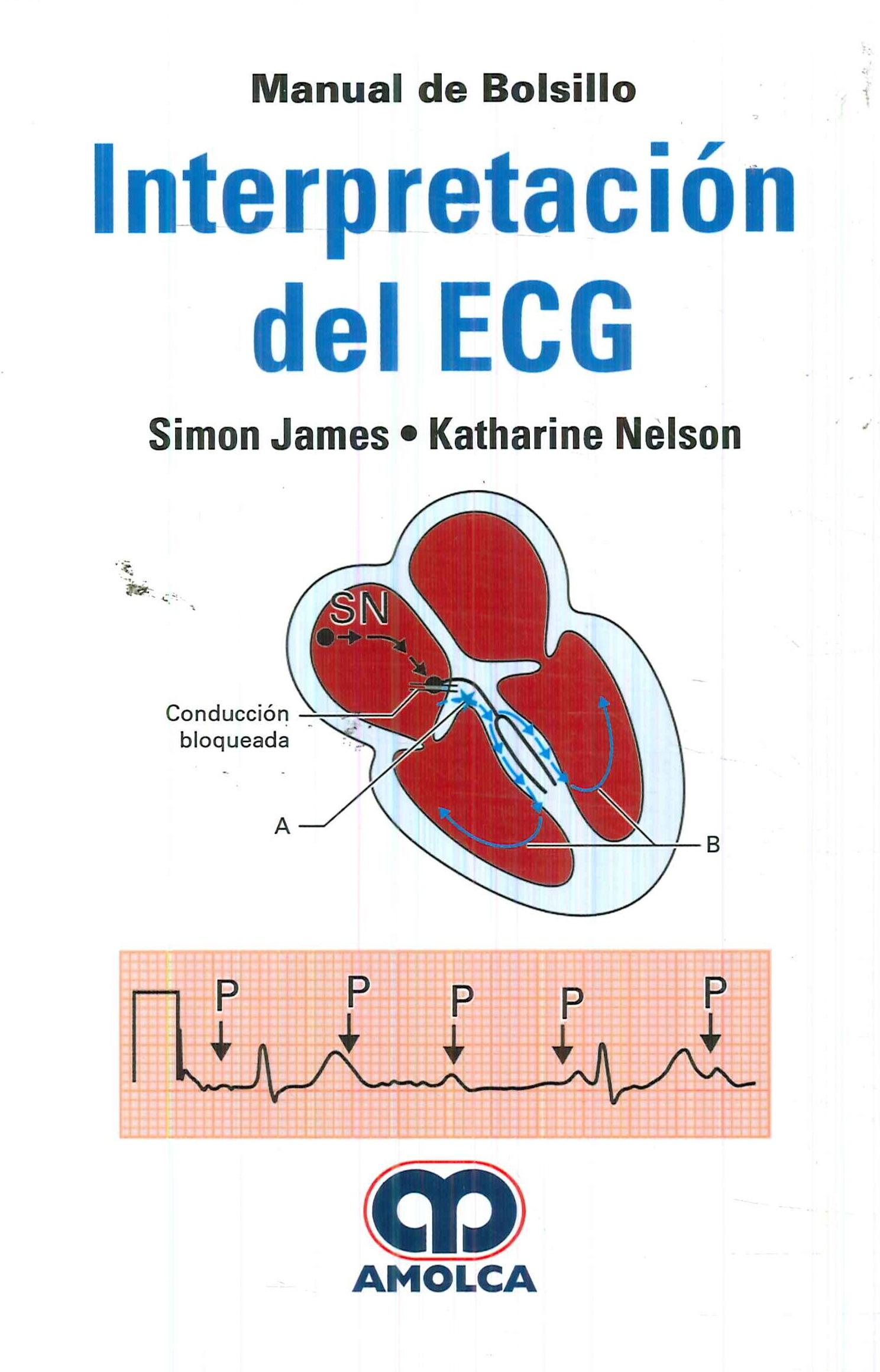 Interpretación del ECG