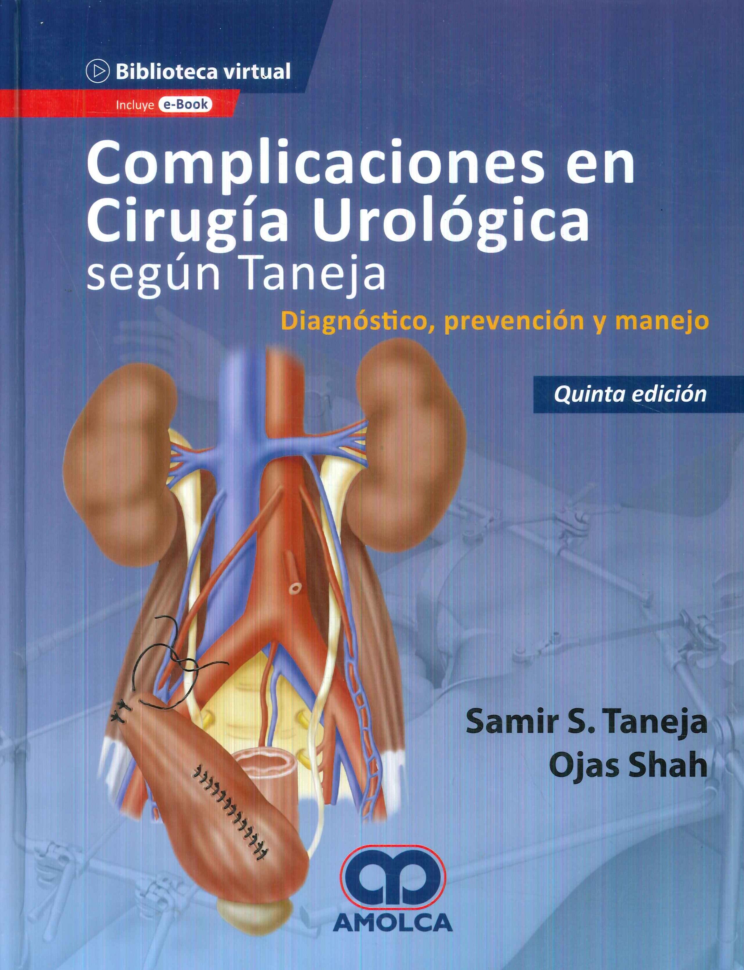 Complicaciones en Cirugía Urológica según Taneja