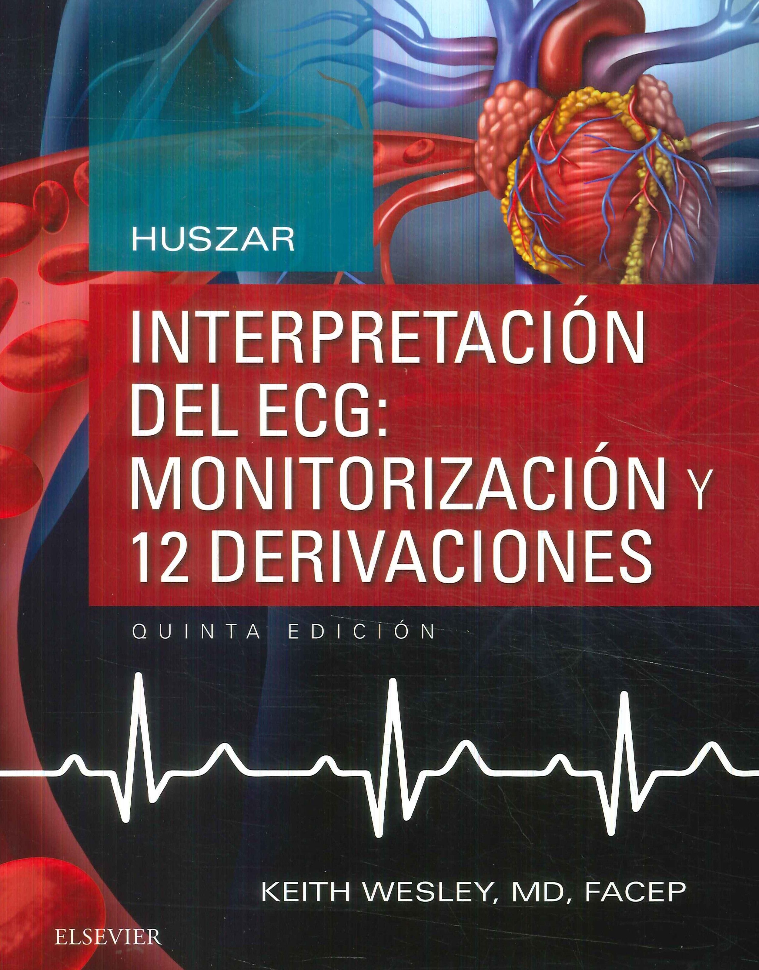 Interpretación del ECG: Monitorización y 12 derivaciones Huszar