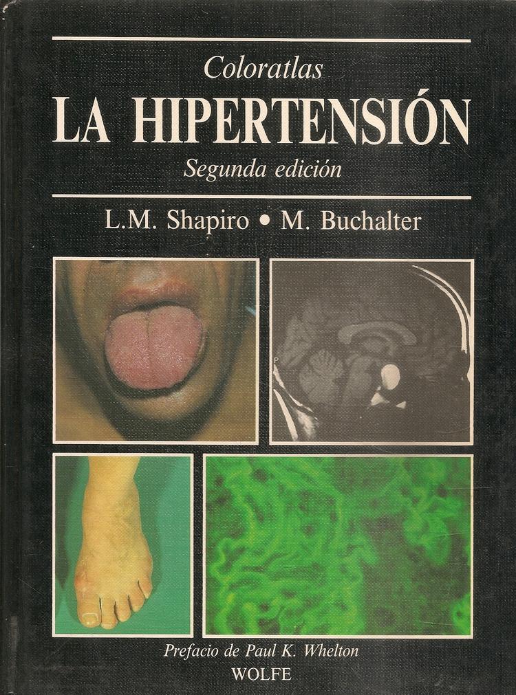Coloratlas La Hipertension