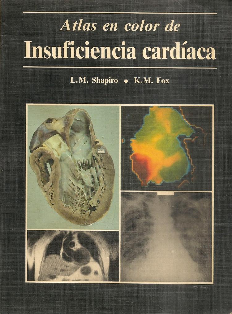 Atlas en Color de Insuficiencia Cardiaca