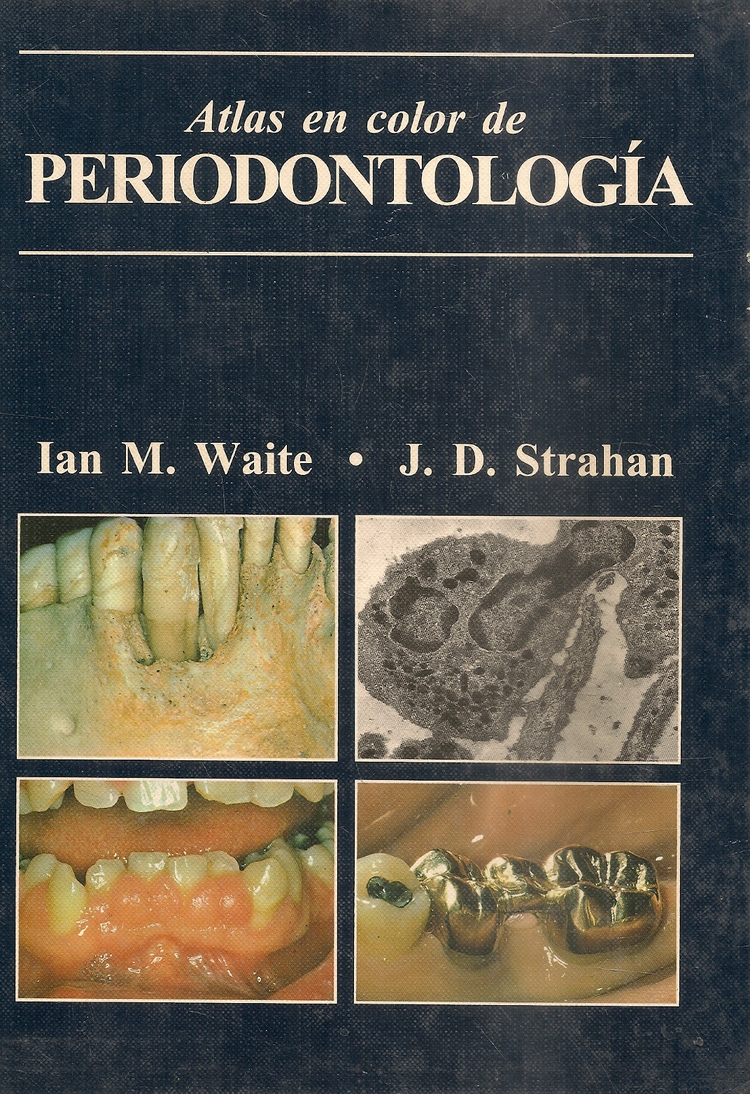 Atlas en color de Periodontologia